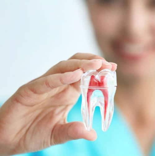 root canal surgery Johannesburg